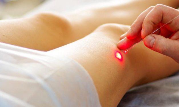 Лазерное лечение варикоза — сосудистая хирургия